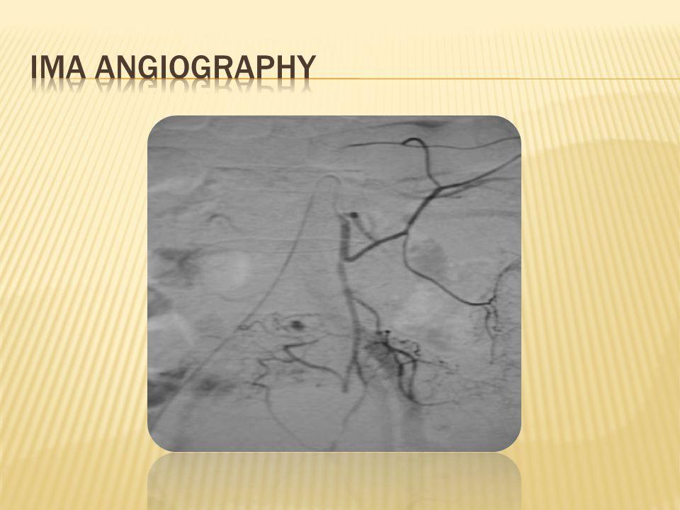 Ima angiography Image credit: