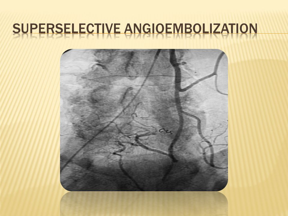 Superselective angioembolization