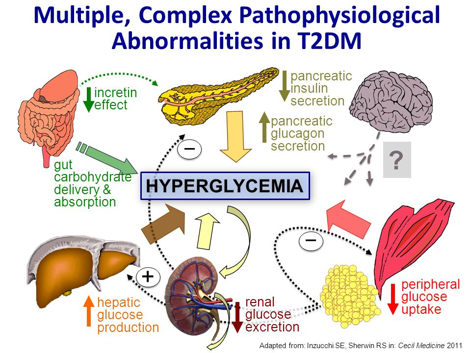 Management of Hyperglycemia in Type 2 Diabetes, 2015: A