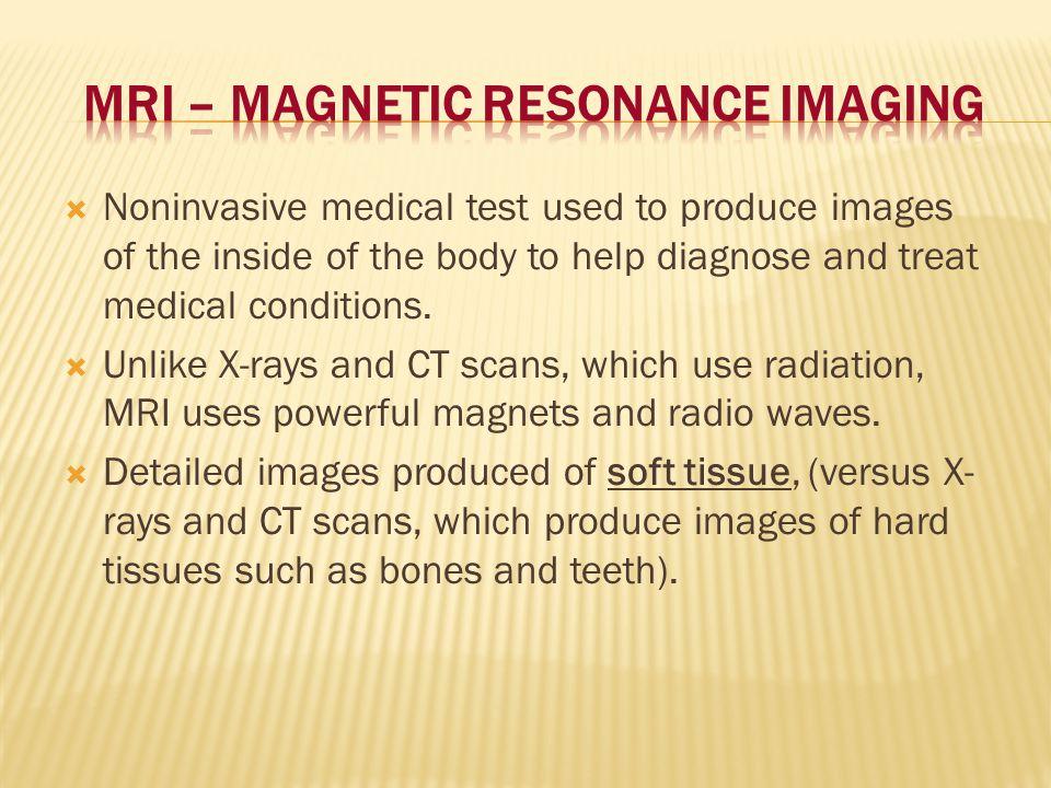MRI – Magnetic Resonance Imaging