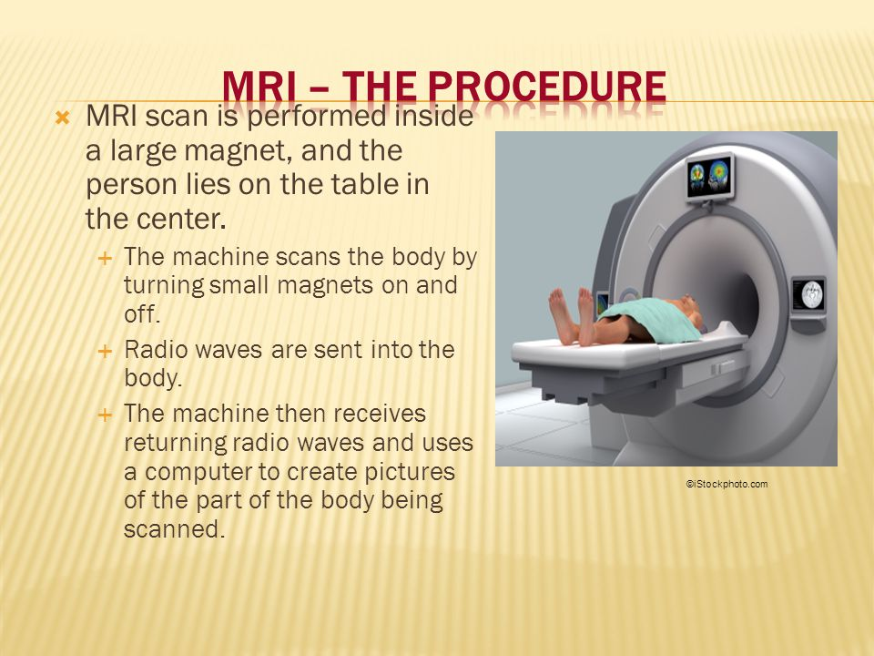 MRI – The Procedure MRI scan is performed inside a large magnet, and the person lies on the table in the center.