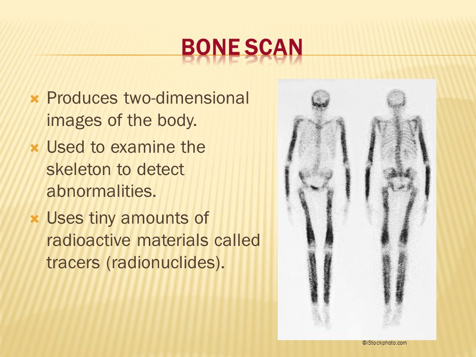 Bone Scan Produces two-dimensional images of the body.