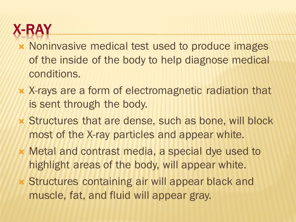 X-Ray Noninvasive medical test used to produce images of the inside of the body to help diagnose medical conditions.