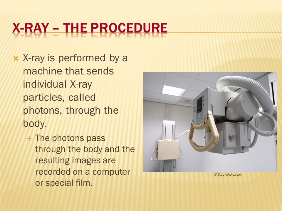 X-Ray – The Procedure X-ray is performed by a machine that sends individual X-ray particles, called photons, through the body.