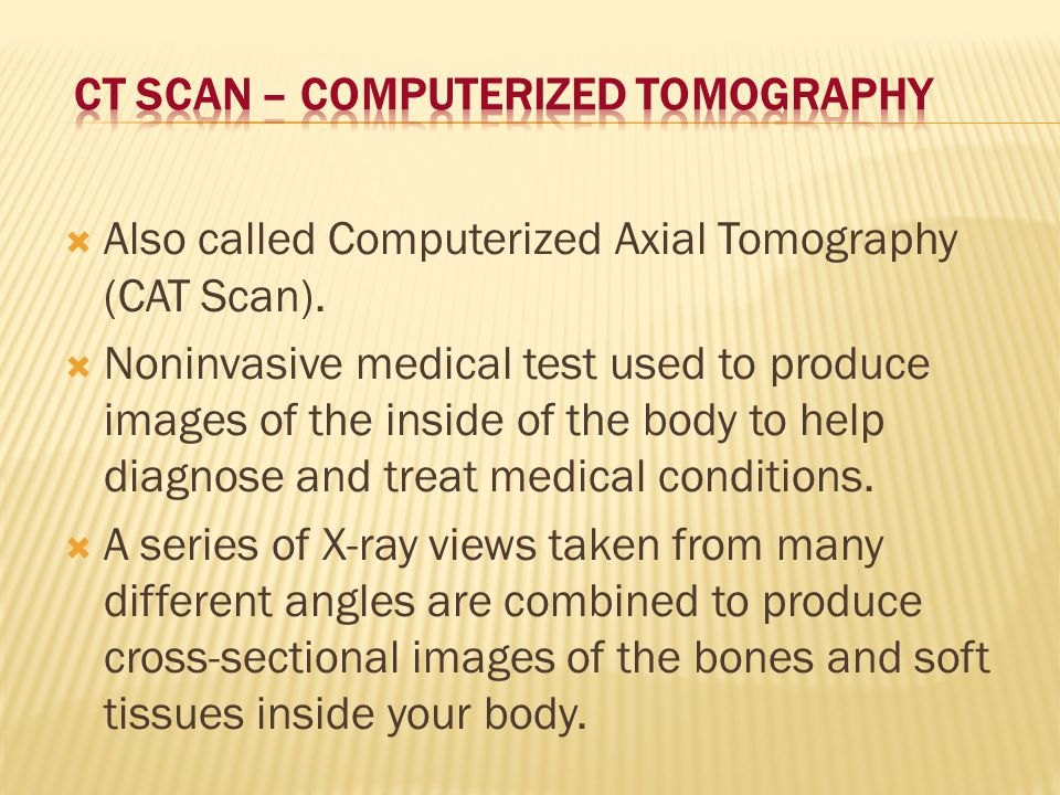 CT Scan – Computerized Tomography