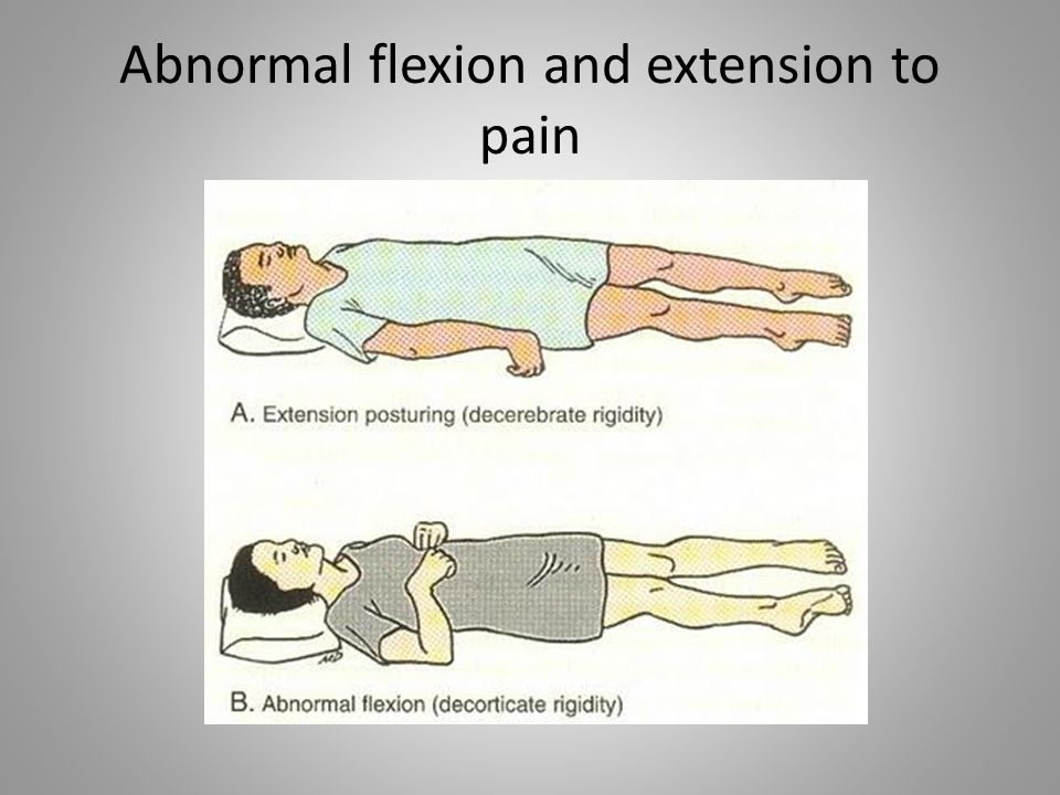 Abnormal flexion and extension to pain