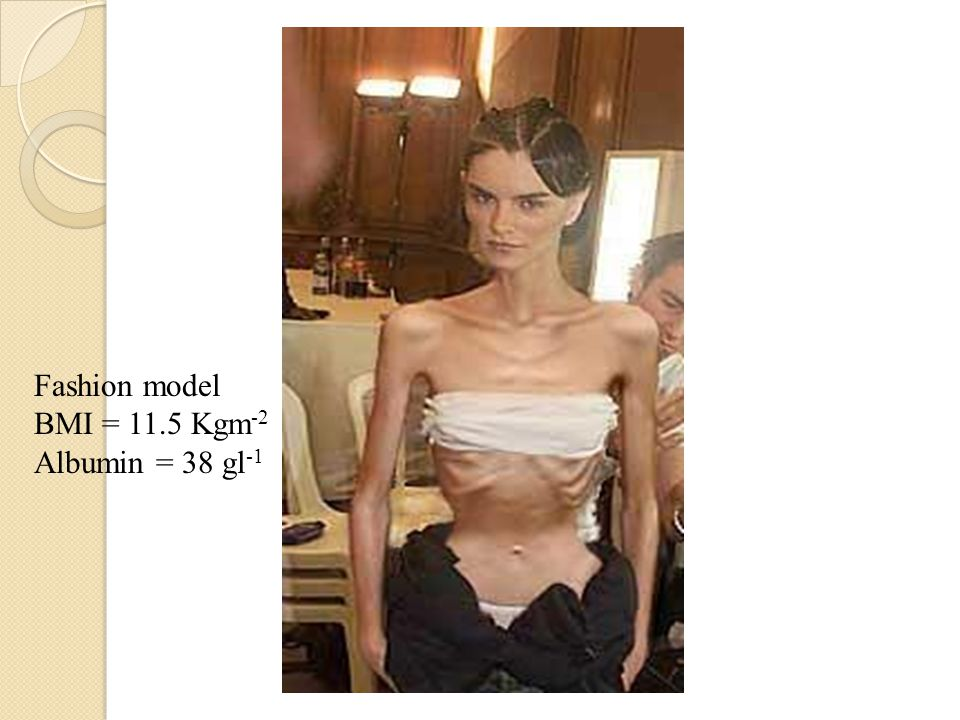 Fashion model BMI = 11.5 Kgm-2 Albumin = 38 gl-1