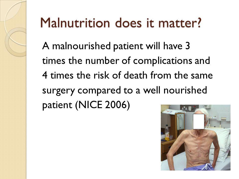 Malnutrition does it matter