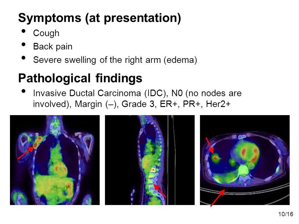 Symptoms (at presentation)