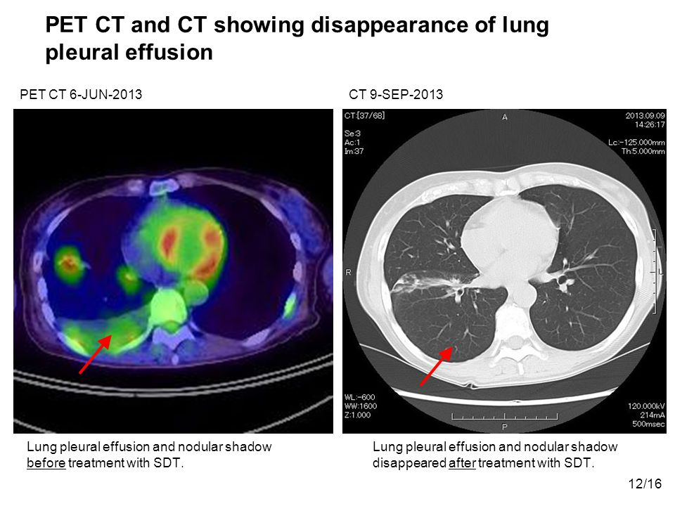 PET CT and CT showing disappearance of lung pleural effusion