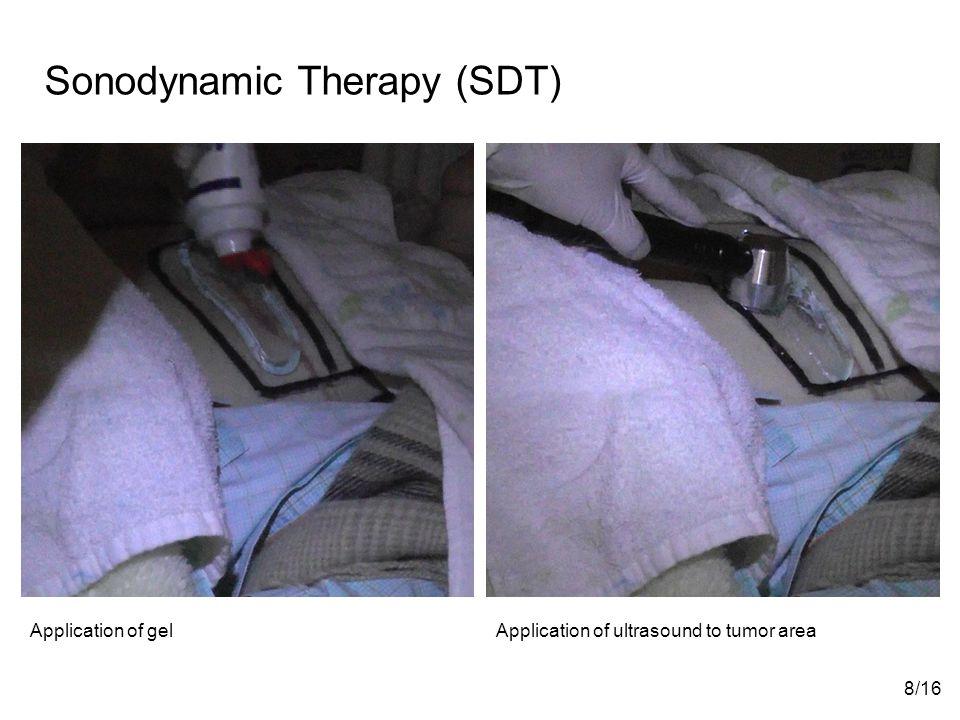 Sonodynamic Therapy (SDT)