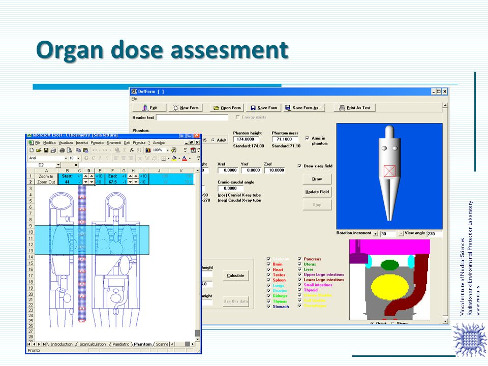 Organ dose assesment Radiation and Environmental Protection Laboratory
