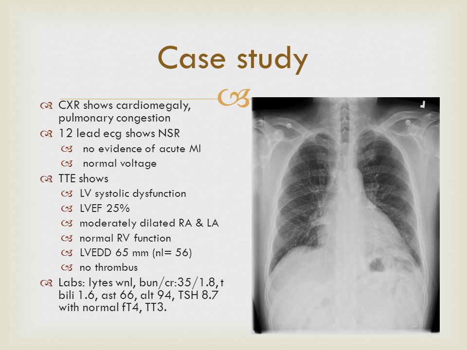 Case study CXR shows cardiomegaly, pulmonary congestion