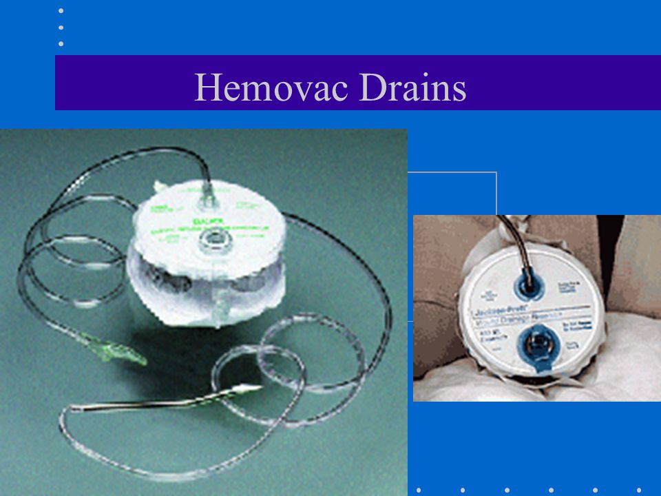 Hemovac Drains