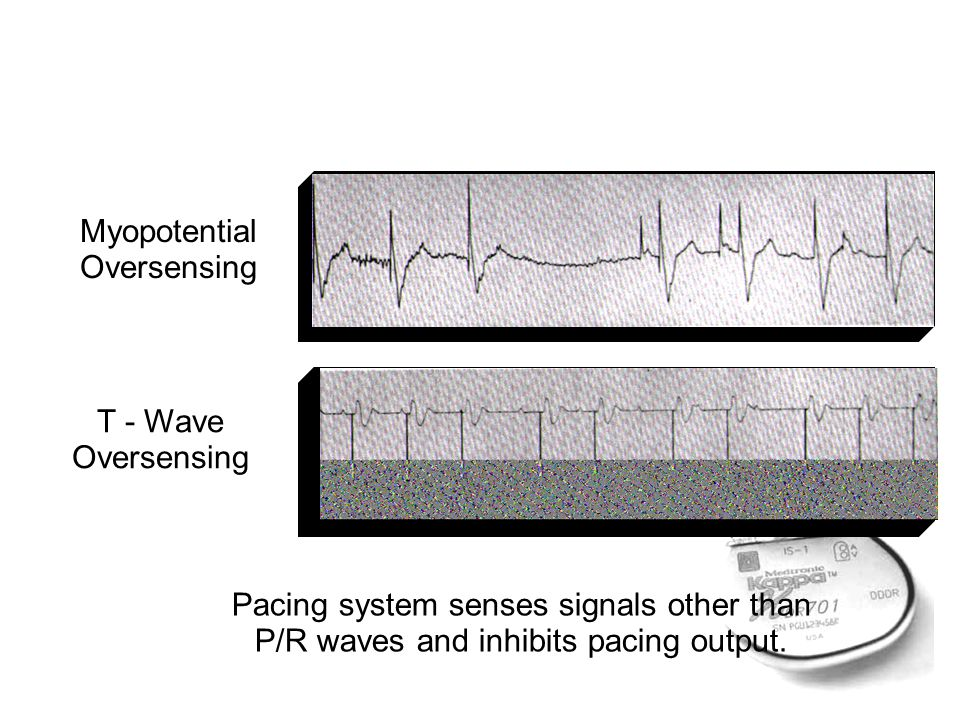 Pacing system senses signals other than