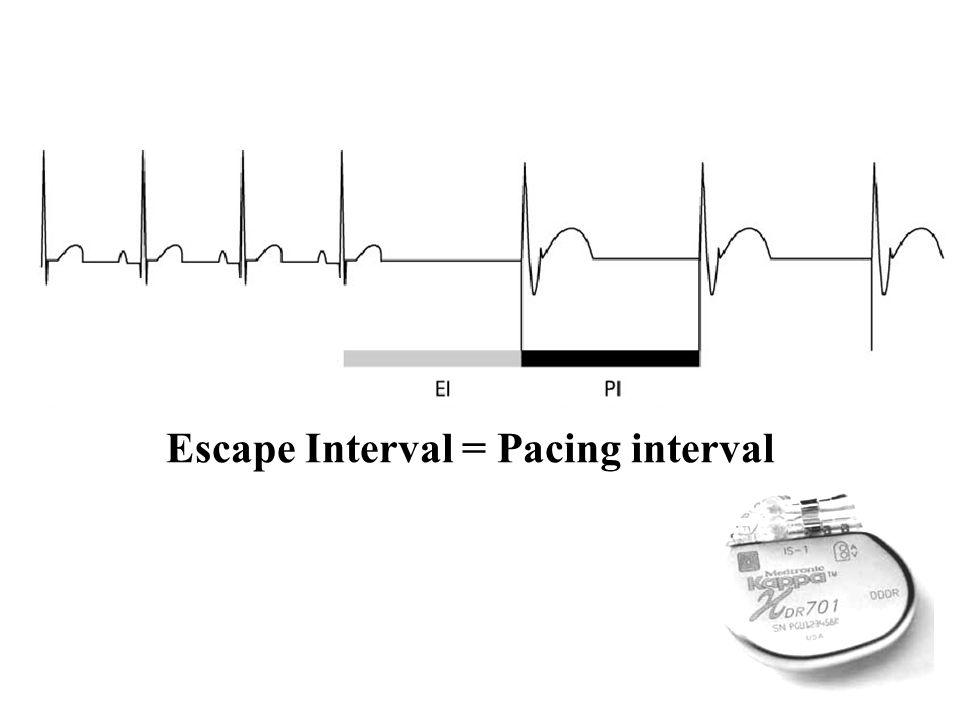 Escape Interval = Pacing interval