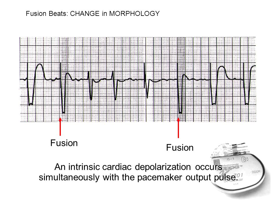 An intrinsic cardiac depolarization occurs