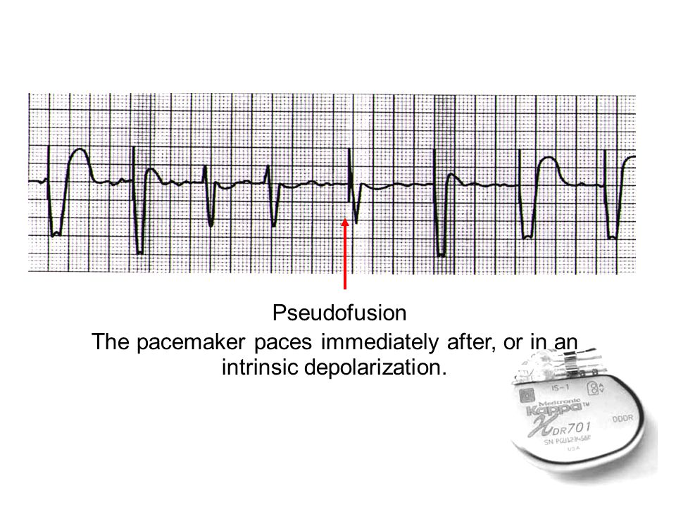The pacemaker paces immediately after, or in an