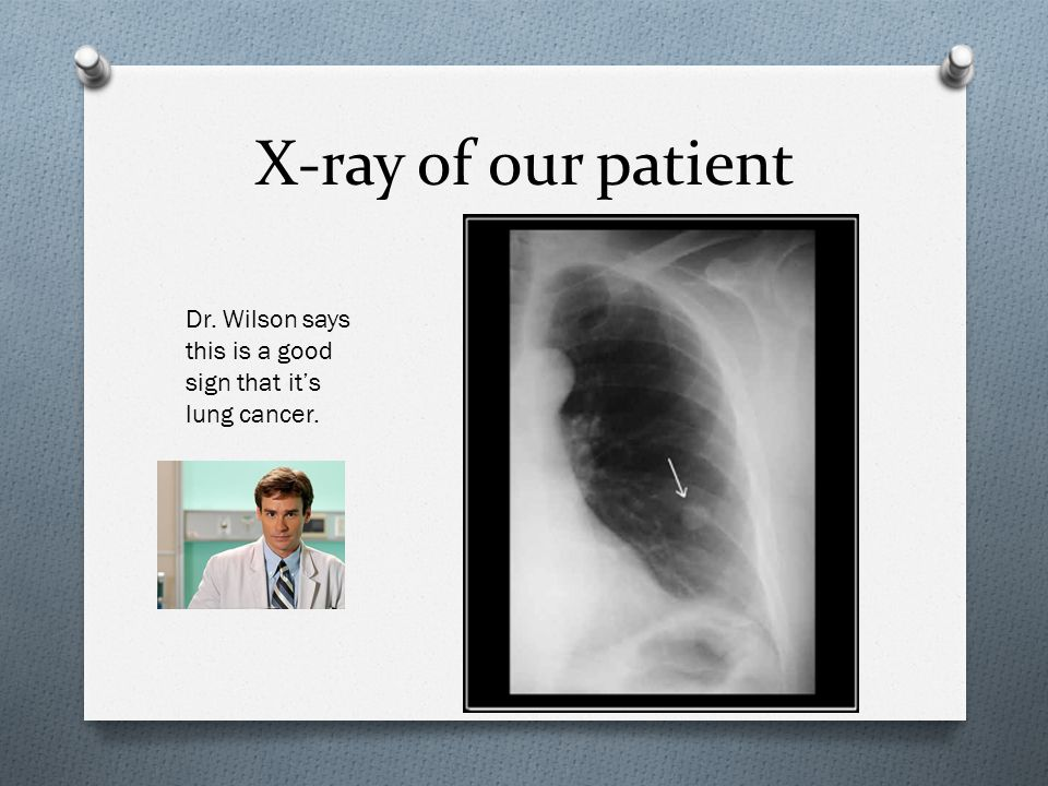 X-ray of our patient Dr. Wilson says this is a good sign that it's lung cancer.