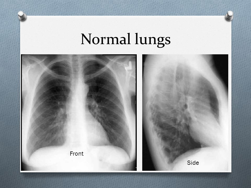 Normal lungs Front Side