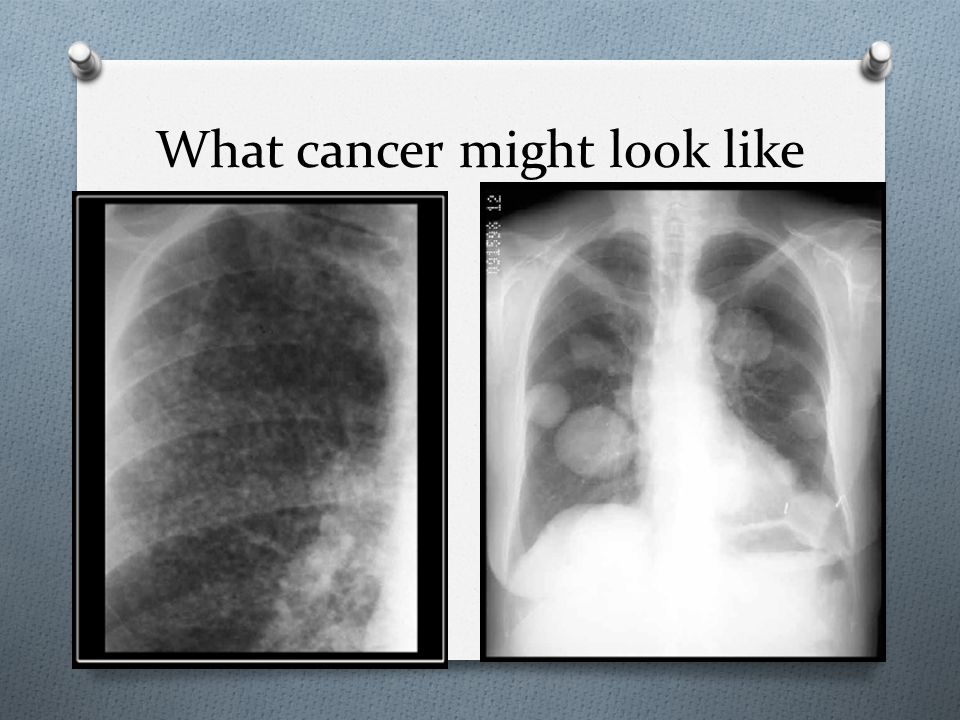 What cancer might look like