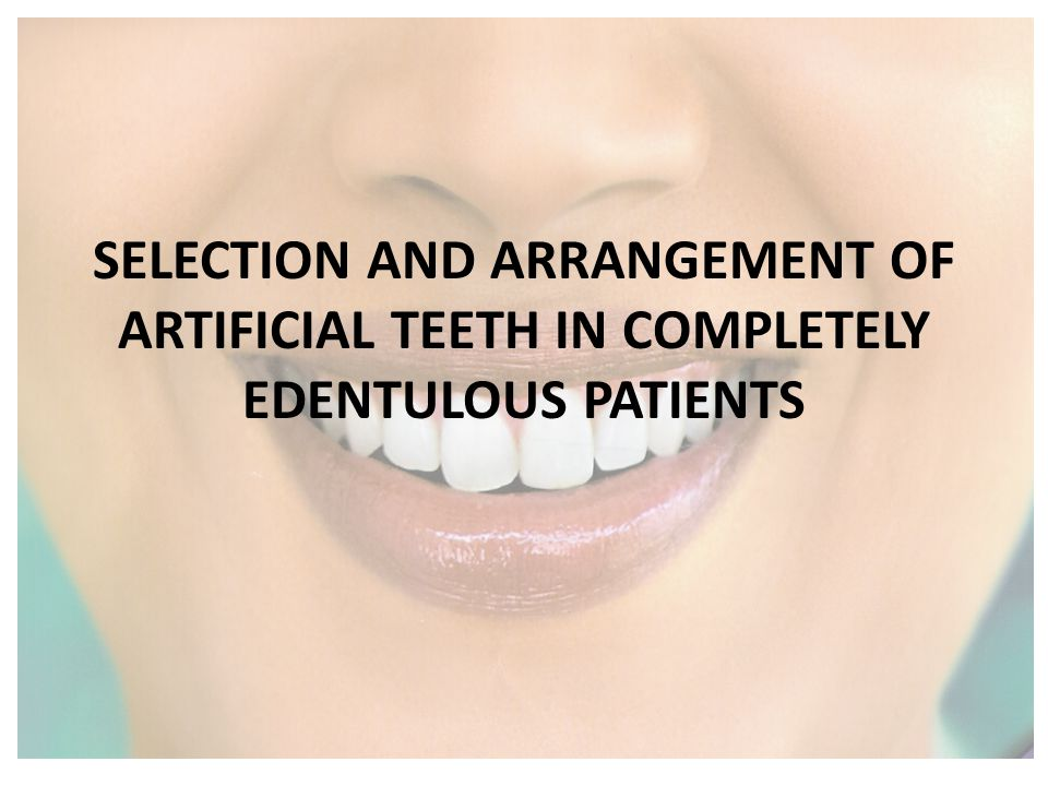 SELECTION AND ARRANGEMENT OF ARTIFICIAL TEETH IN COMPLETELY EDENTULOUS PATIENTS