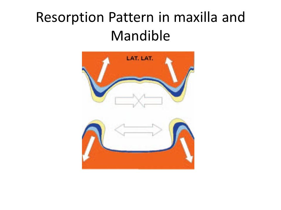 Resorption Pattern in maxilla and Mandible