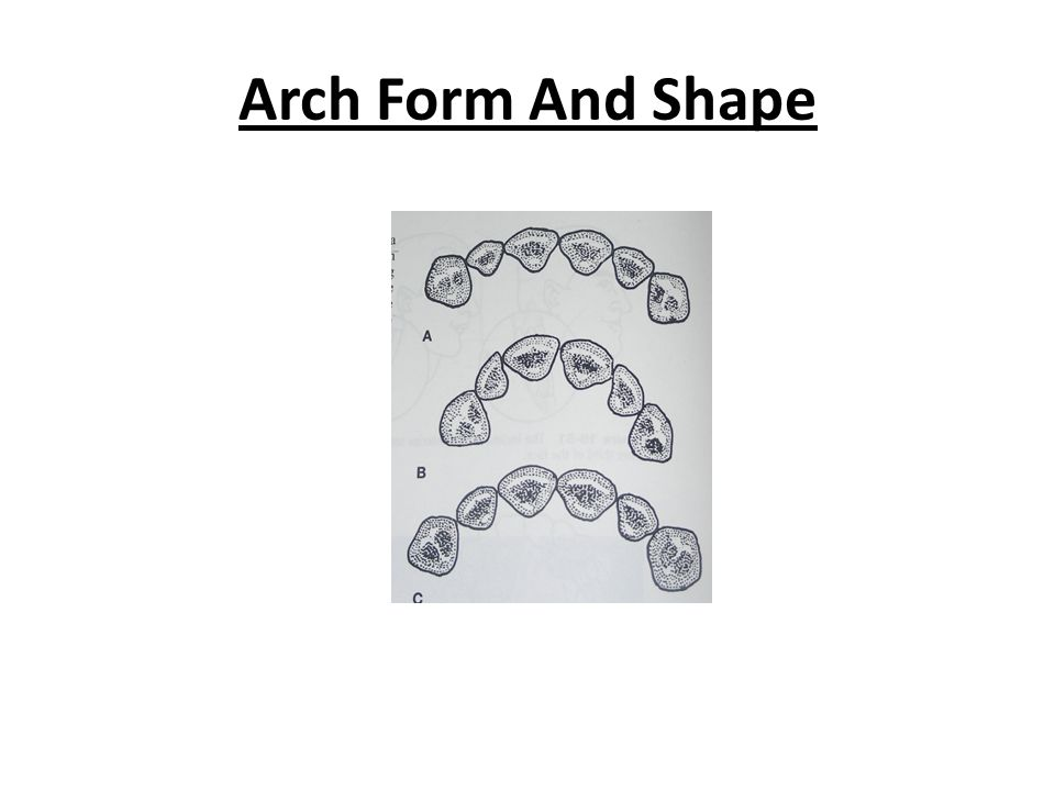 Arch Form And Shape