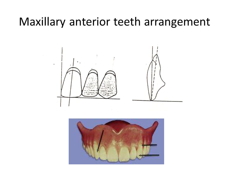 Maxillary anterior teeth arrangement