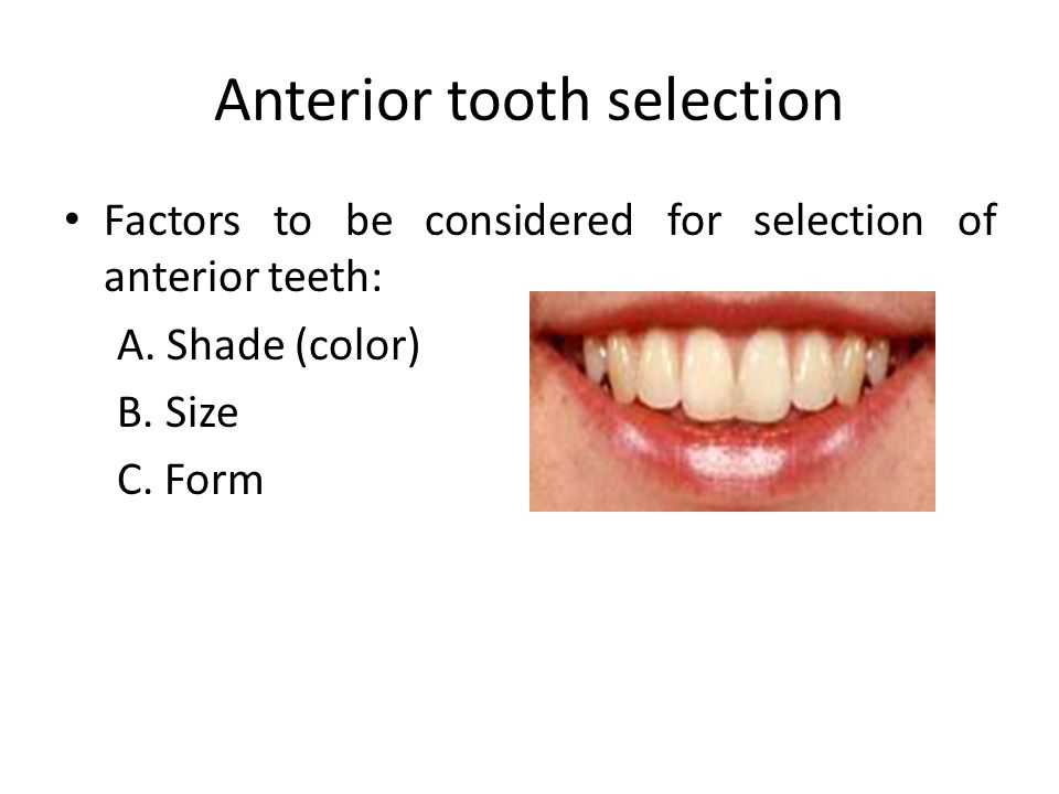 Anterior tooth selection