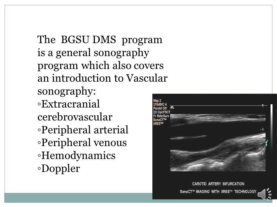The BGSU DMS program is a general sonography program which also covers an introduction to Vascular sonography:
