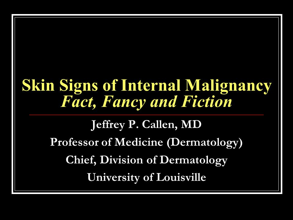 Skin Signs of Internal Malignancy Fact, Fancy and Fiction