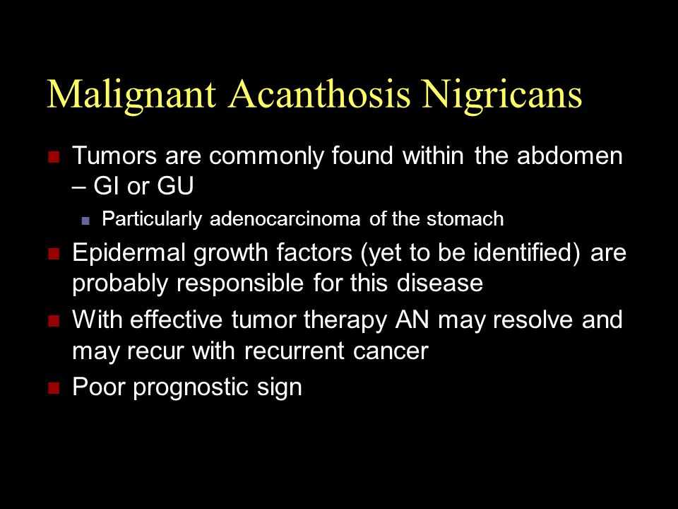 Malignant Acanthosis Nigricans