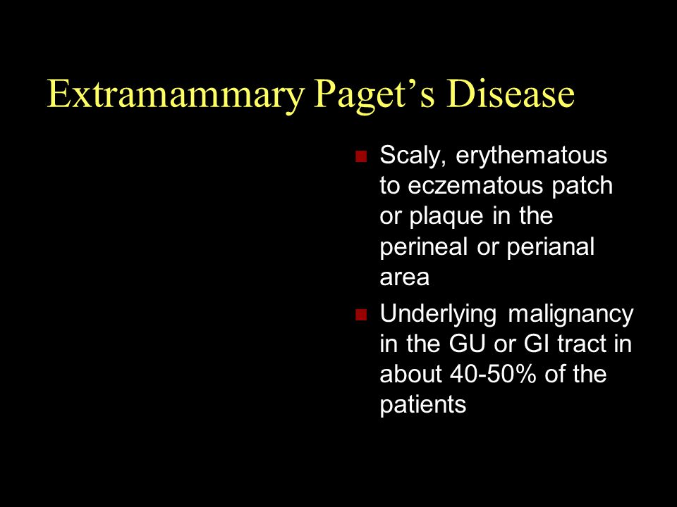 Extramammary Paget's Disease