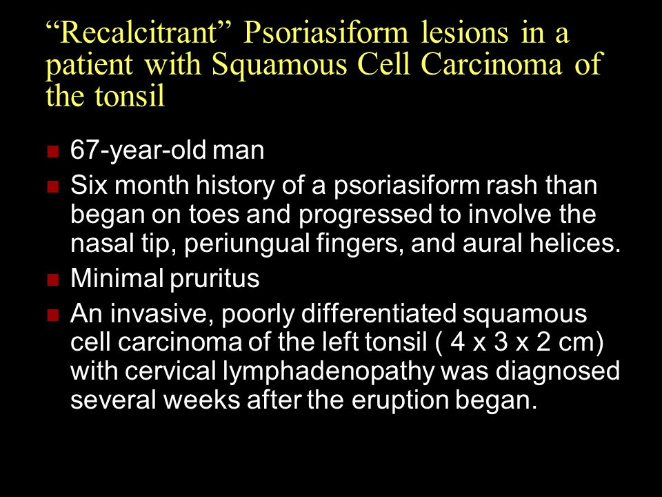 Recalcitrant Psoriasiform lesions in a patient with Squamous Cell Carcinoma of the tonsil