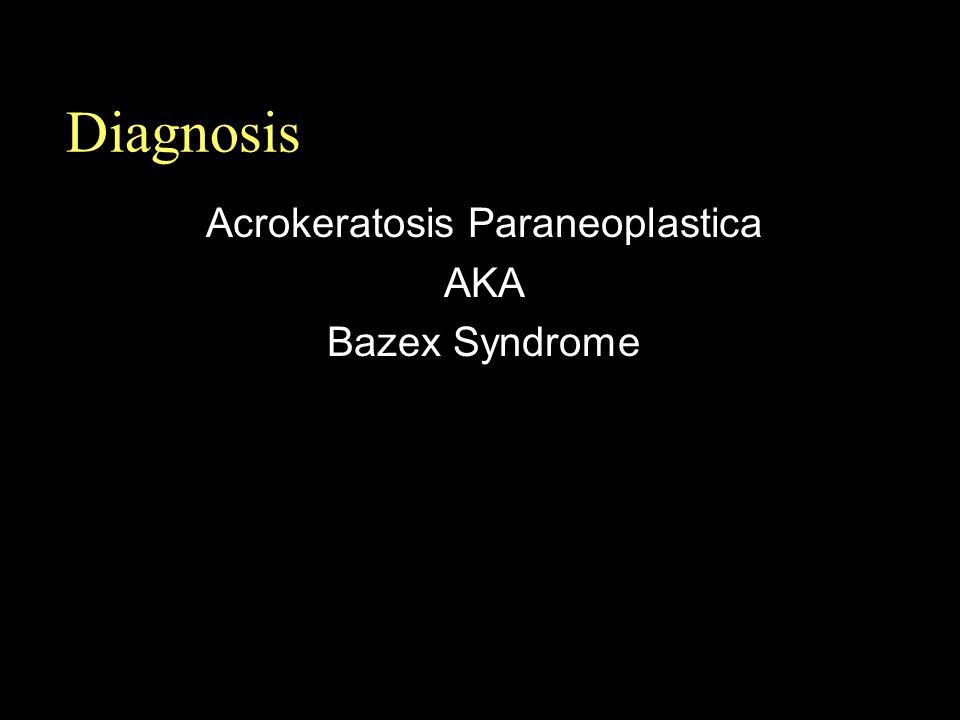 Acrokeratosis Paraneoplastica