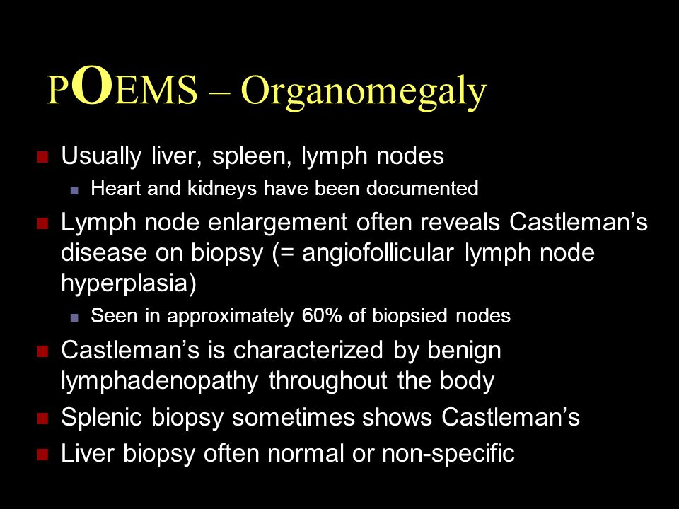 POEMS – Organomegaly Usually liver, spleen, lymph nodes