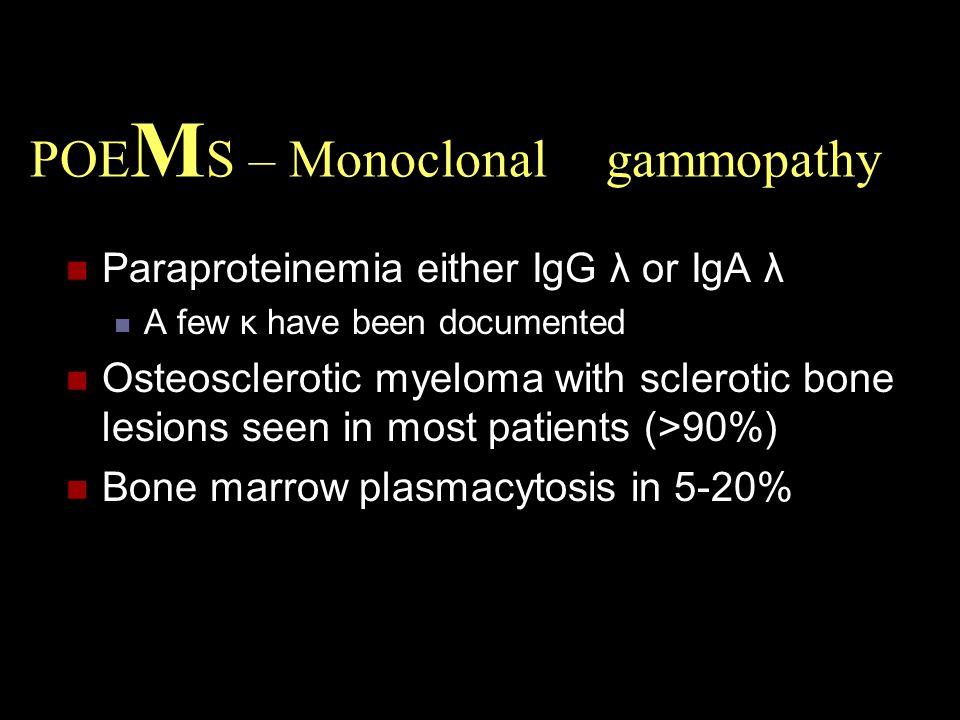 POEMS – Monoclonal gammopathy