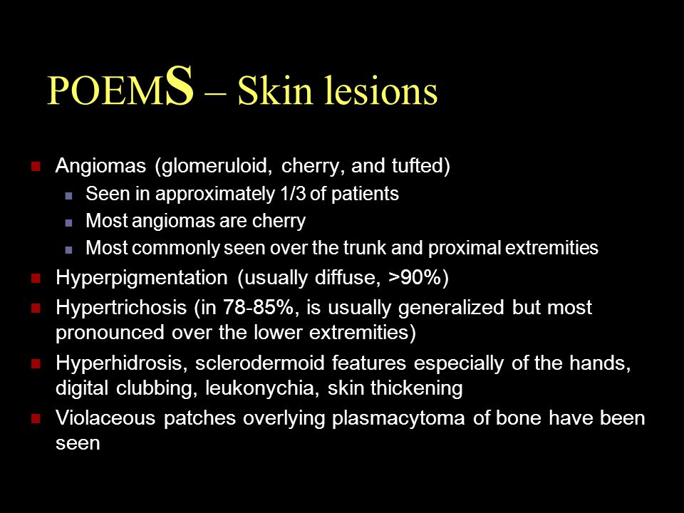 POEMS – Skin lesions Angiomas (glomeruloid, cherry, and tufted)