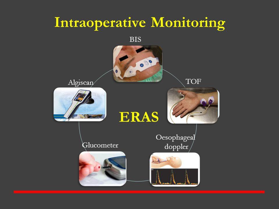 Intraoperative Monitoring