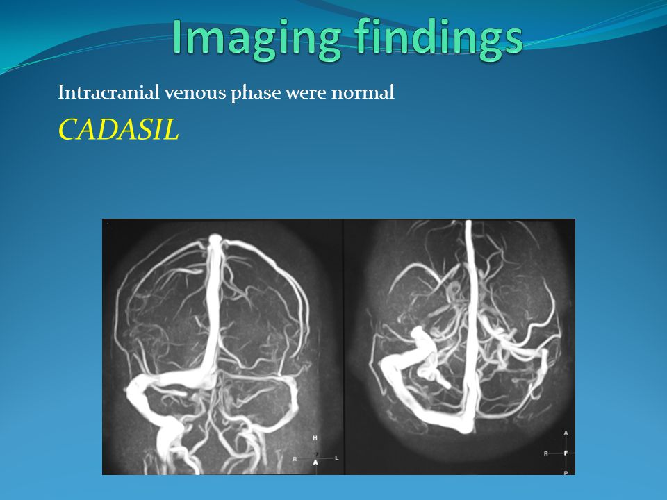 Imaging findings Intracranial venous phase were normal CADASIL