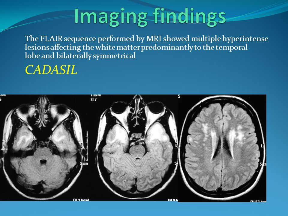 Imaging findings CADASIL