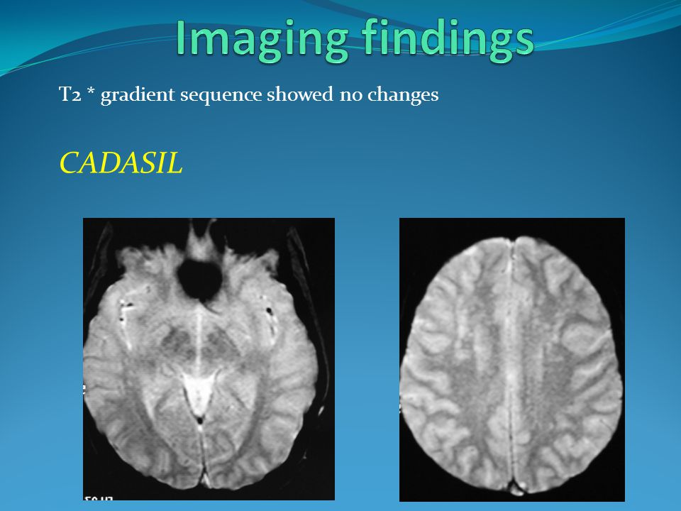 Imaging findings T2 * gradient sequence showed no changes CADASIL