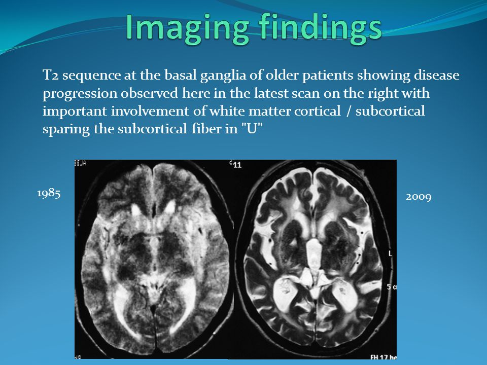 Imaging findings