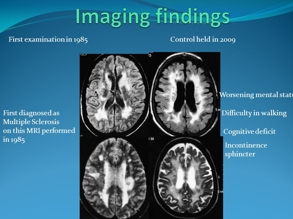 Imaging findings First examination in 1985 Control held in 2009