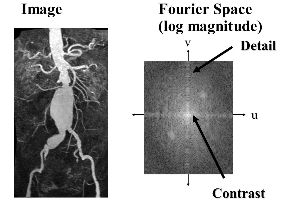Image Fourier Space (log magnitude) u v Detail Contrast