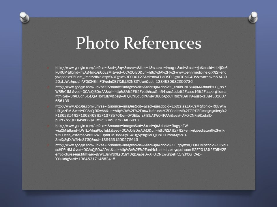 Photo References