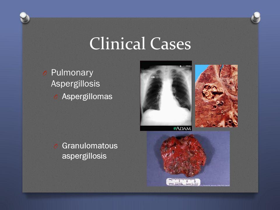 Clinical Cases Pulmonary Aspergillosis Aspergillomas