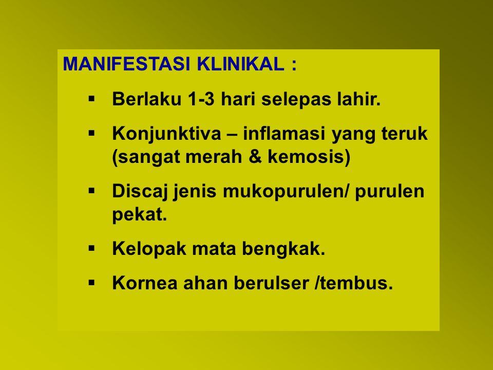 MANIFESTASI KLINIKAL :