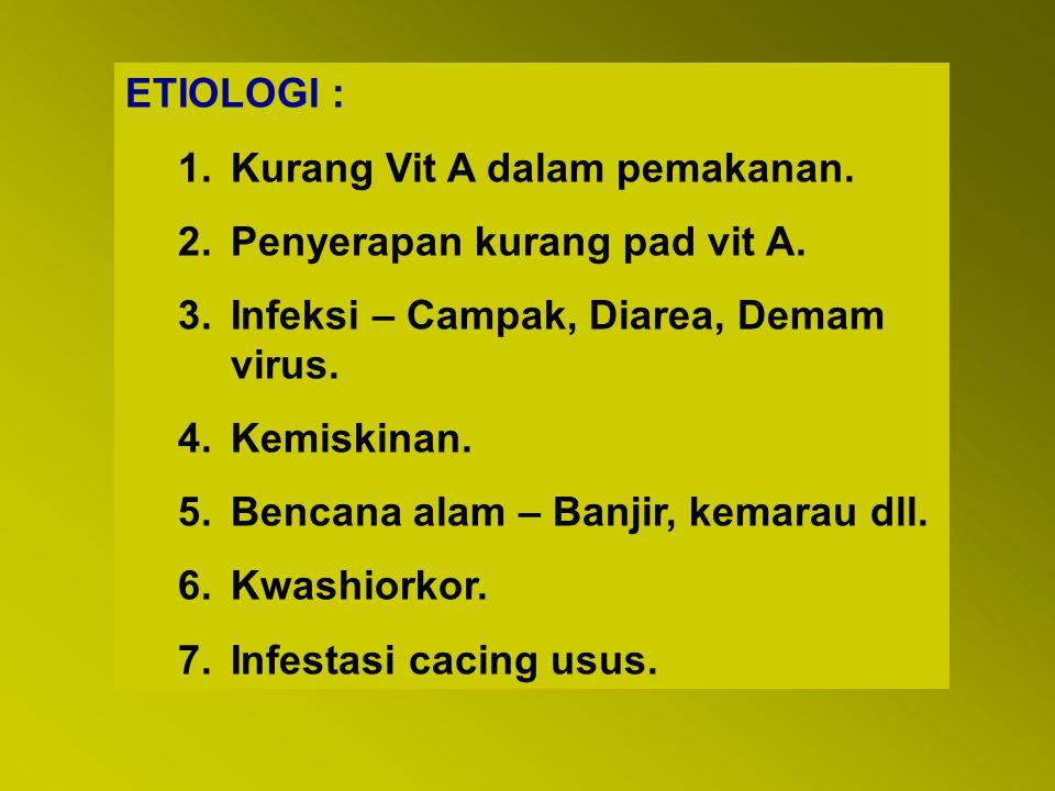 ETIOLOGI : Kurang Vit A dalam pemakanan. Penyerapan kurang pad vit A. Infeksi – Campak, Diarea, Demam virus.